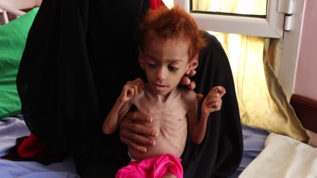 mother holds her malnourished child who is receiving treatment at a hospital in the abs district in hajjah province on october 1, 2018. - yemen stock videos & royalty-free footage