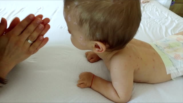 mother taking care of baby with chicken pox - mmr stock videos and b-roll footage