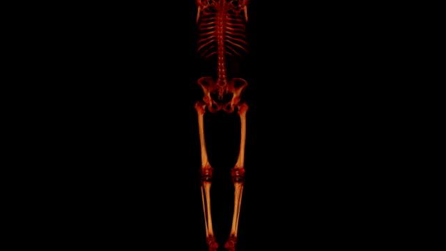Multi-Detektor CT Angiography Ausläufer der unteren