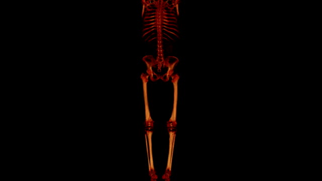 stockvideo's en b-roll-footage met multi–detector ct angiography of lower extremity - nierslagader