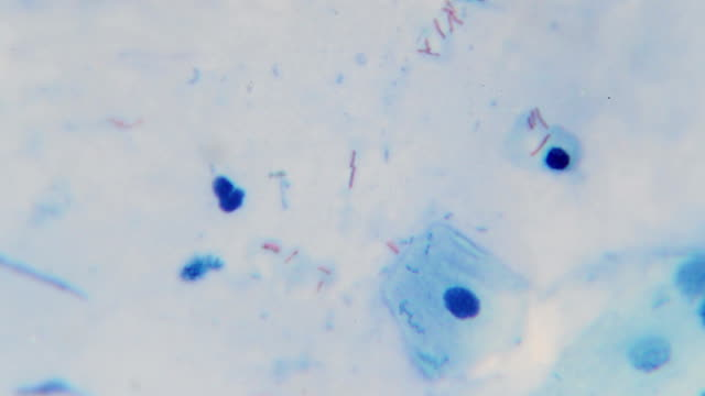 Mycrobacterium tuberculosis (red bacilli) from sputum AFB stain