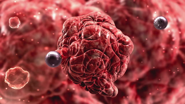 cgi ecu nano technology, microscopic view of synthetic spheres projecting light beams onto tumor - nanotecnologia video stock e b–roll