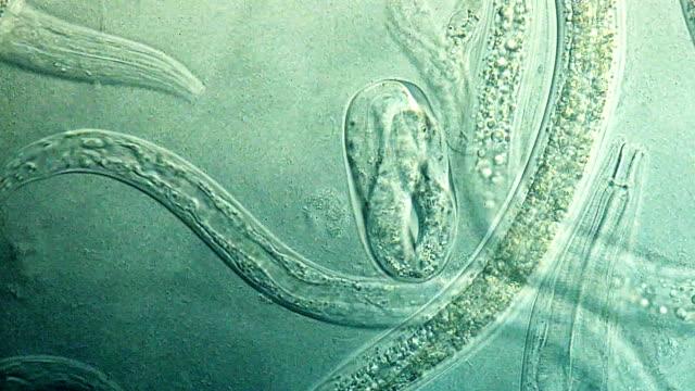 """""""Nematode worms, fluorescent microscopy"""""""