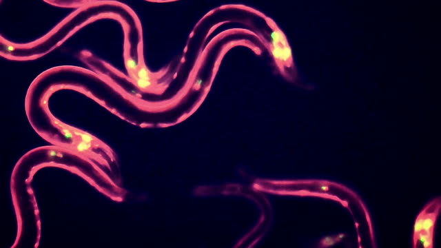 """nematode worms, fluorescent microscopy"" - animal head stock videos & royalty-free footage"
