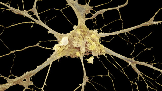 """vídeos de stock, filmes e b-roll de """"nerve cell, sem"""" - tecido humano"""