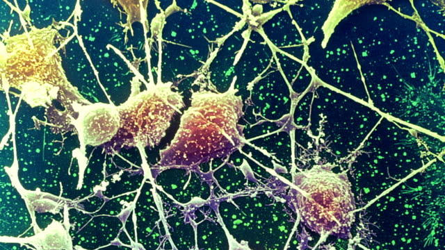 "vídeos de stock e filmes b-roll de ""nerve cells, sem"" - axónio"