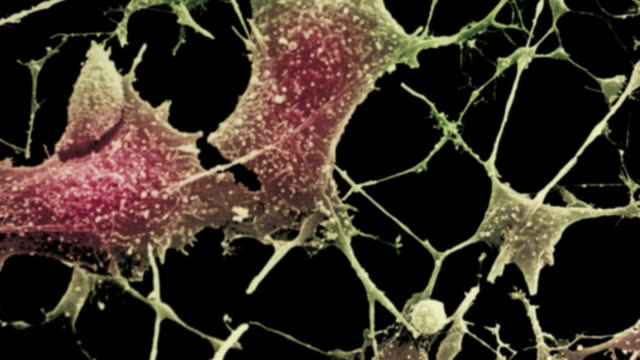 nerve cells - dendrite stock videos and b-roll footage