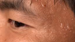 nervous asian man sweating skin close up macro