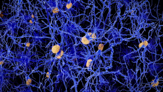 Neurons with amyloid plaques, animation