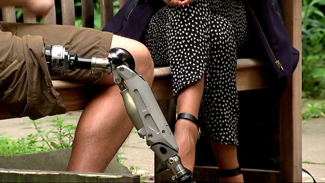 New prosthetic leg implant trialled by amputees at Royal National Orthopaedic Hospital ENGLAND London Close shot of 'implant' prosthetic leg worn by...