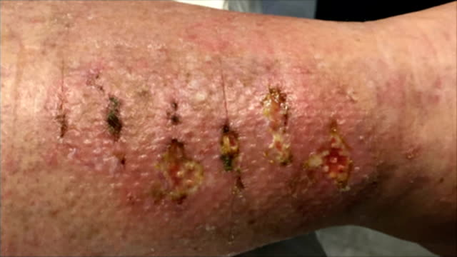 new skin graft technique trialled at royal free hospital; gillian mayer's leg injury - skin graft stock videos & royalty-free footage