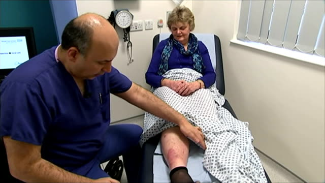 new skin graft technique trialled at royal free hospital; mosahebi chatting to mayer as looking at her leg - skin graft stock videos & royalty-free footage