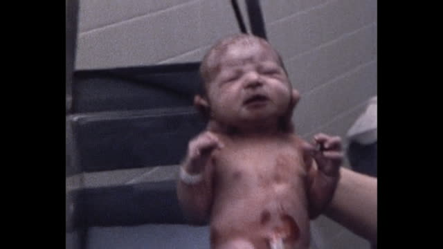 1974 Newborn baby in delivery room