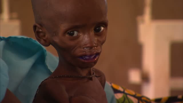 Niger in Africa is one of the poorest countries in the world As many as 10thousand of its children are treated for severe malnutrition every week...