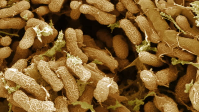"""nitrogen-fixing bacteria, sem"" - symbiotic relationship stock videos & royalty-free footage"