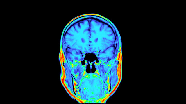 'Normal MRI brain scan, coronal view'