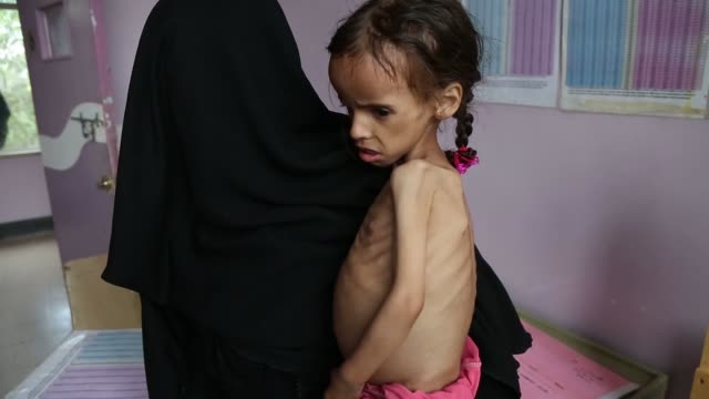 nurse checks a malnourished girl as she receives treatment at a hospital on september 03, 2018 in sana'a, yemen. due to more than three years and... - yemen bildbanksvideor och videomaterial från bakom kulisserna