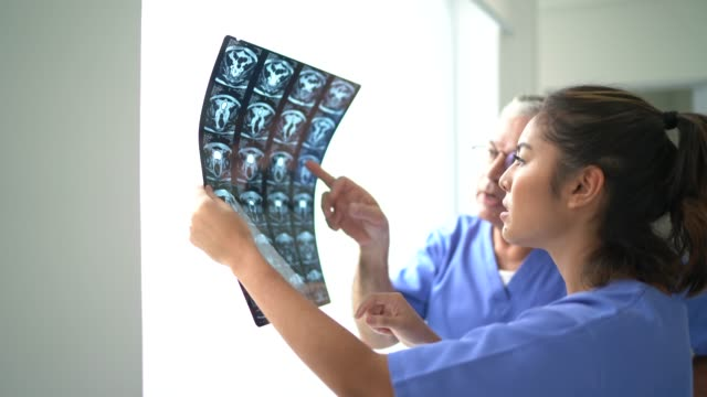 nurse colleagues analyzing medical x-ray - società video stock e b–roll