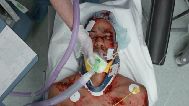 nurse connecting the electrodes on trauma patient to the monitor - haarnetz stock-videos und b-roll-filmmaterial
