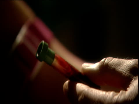 nurse holds vial of blood extracted from patient's arm in blood test - braccio umano video stock e b–roll
