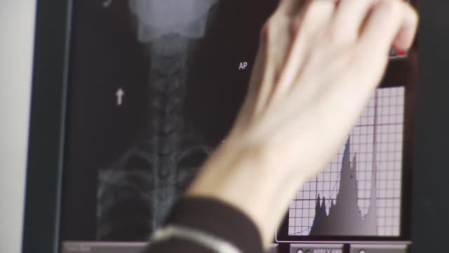 vídeos de stock e filmes b-roll de ecu tu td nurse studying x-ray image on computer screen / south burlington, vermont, usa - primeiríssimo plano