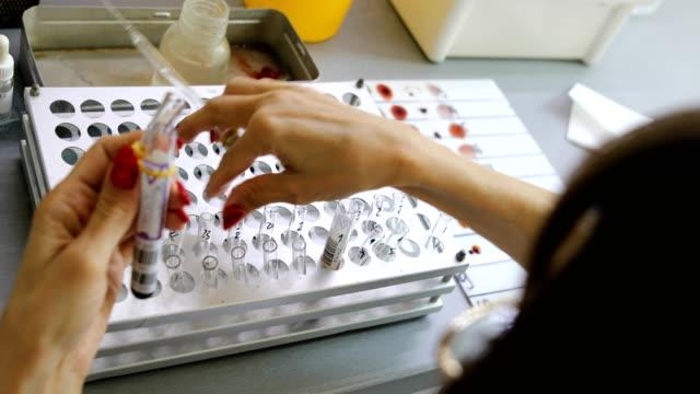 krankenschwester arbeitet mit blutproben im labor. zusammenrücken. tropfen chemische lösung für die analyse im labor - phiole stock-videos und b-roll-filmmaterial