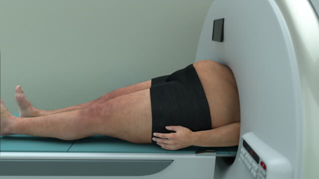 vídeos de stock e filmes b-roll de obesity - man gets stuck in an mri machine - morte