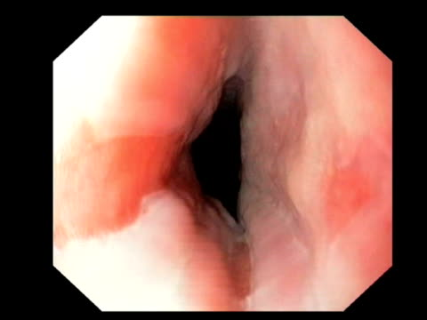 oesophageal inlet patch. endoscope view of the upper part of the oesophagus (gullet), showing abnormal cells. this patch is made up of heterotopic gastric mucosa cells, which are normally found lower down in the stomach.. - oesophagus stock videos & royalty-free footage
