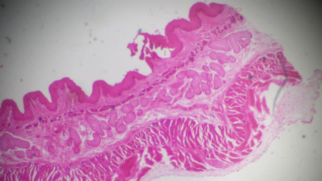 oesophagus t.s. under light microscopy - oesophagus stock videos & royalty-free footage