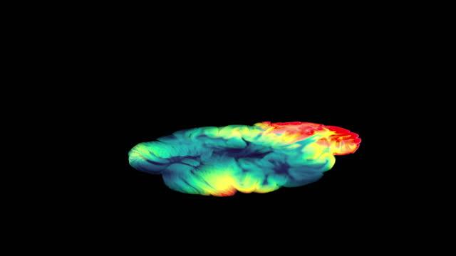 stockvideo's en b-roll-footage met mri of the brain axial t2 flair for detect brain stroke disease - cerebellum