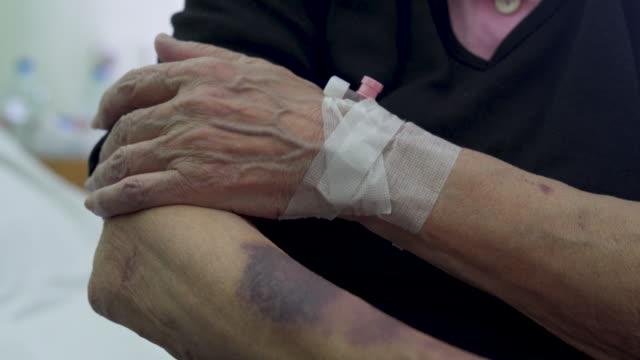vídeos y material grabado en eventos de stock de mano de edad con contusiones y hematoma - tipos de piel