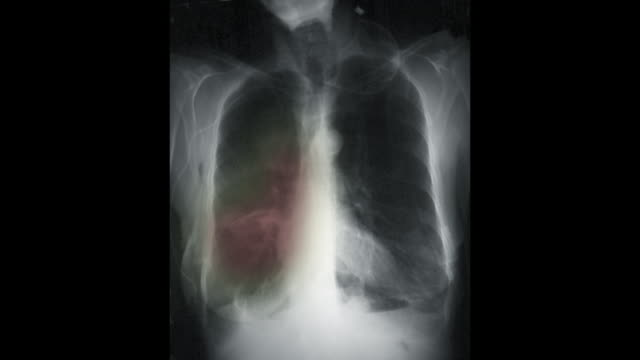 vídeos de stock e filmes b-roll de zi on a chest x-ray showing lung cancer and chronic obstructive lung disease, copd - cancro