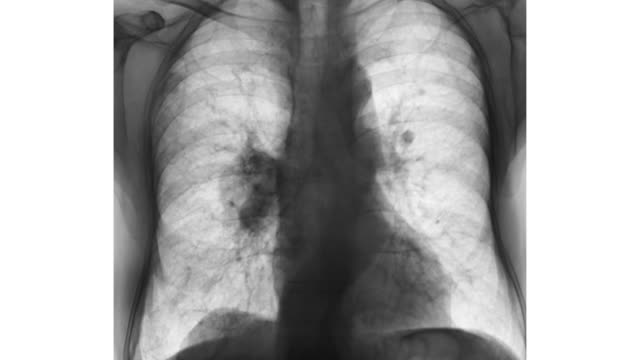vídeos y material grabado en eventos de stock de zi on a chest x-ray showing lung cancer - imagen de rayos x