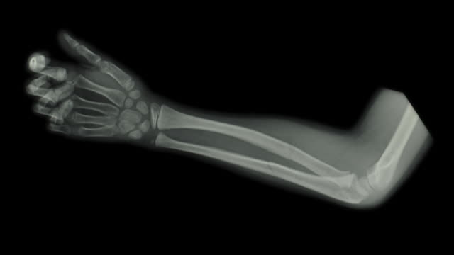 ZI on an x-ray of the forearm of a seven year old boy showing a fracture of the forearm