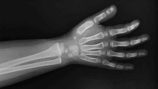 vídeos de stock e filmes b-roll de zi on an x-ray of the wrist of a three year old girl showing a greenstick fracture of the distal radius and ulna - raio x