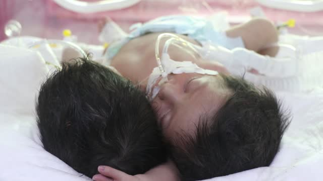 YEM: Conjoined Twins Born Amid Medical Supplies Shortage In Yemen