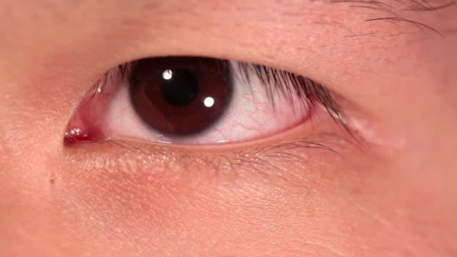 CU Oriental eye iris / Sao Paulo, Brazil