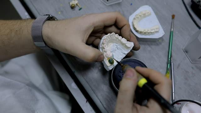 vidéos et rushes de orthodontiste travaillant - bouche humaine