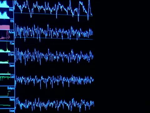 Oscillating tracer lines measuring brain activity move across screen of electro-encephalogram monitor