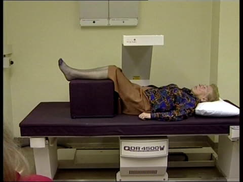 new drug breakthrough; itn lib date unknown england: int sequence scan being taken of spine of woman suffering from osteoporosis - osteoporosis stock videos & royalty-free footage