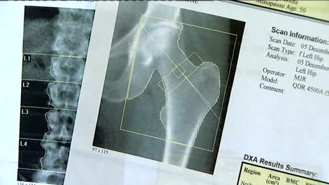 osteoporosis sufferers win high court case over drug watchdog nice; england: int anne bedish looking at x-ray scan information bedish talking with... - osteoporosis stock videos & royalty-free footage