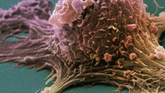 """Ovarian cancer cell, SEM"""