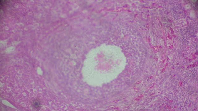 vidéos et rushes de ovarium section transversale dans la microscopie - sperme