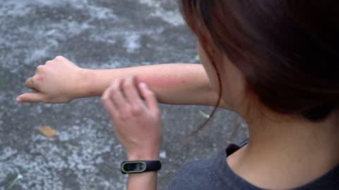 stockvideo's en b-roll-footage met over schouder geschoten van vrouw krabben huiduitslag op haar arm - pellen