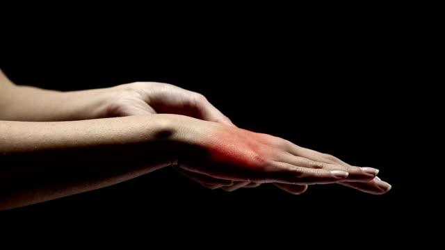 vídeos de stock, filmes e b-roll de dor de uma mulher palm - articulação humana termo anatômico