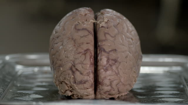 cu pan across a human brain - anatomie stock-videos und b-roll-filmmaterial