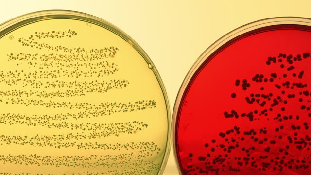 pan across a row of petri dishes containing bacteria samples. - piastra petri video stock e b–roll