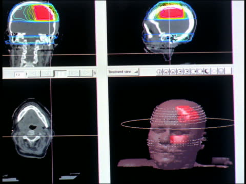 Pan monitor showing rotating computer generated image brain scan images