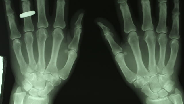vídeos de stock e filmes b-roll de pan up on an x-ray of a pair of hands. - raio x