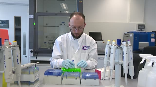 pancreatic cancer breakthrough professor andrew biankin interview sot scientist wearing cancer research uk white coat transferring samples in lab... - pancreatic cancer stock videos and b-roll footage